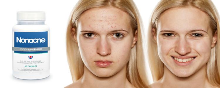 Les effets de l'application Nonacne. Des effets secondaires peuvent-ils survenir?
