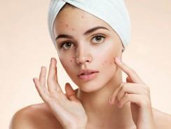 Comment prendre soin de la peau pendant la puberté