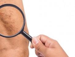 Varices – prévention, recherche, traitement