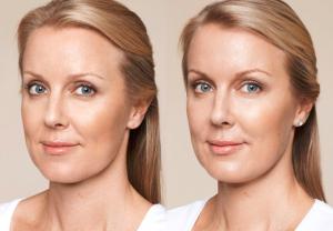 Pure Ravishing Skin: forum, découvrez les avis des consommateurs du sérum
